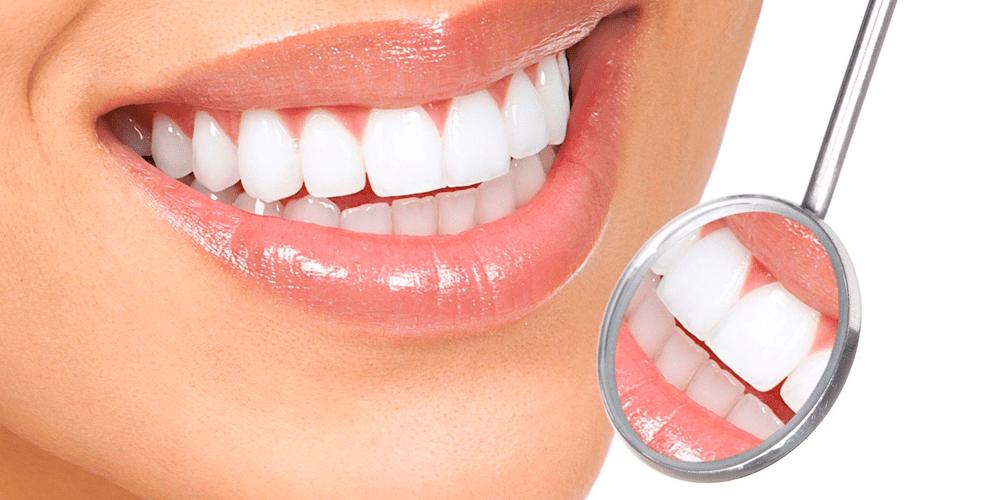 Qualquer pessoa pode usar lente de contato dental  23ac0915e6